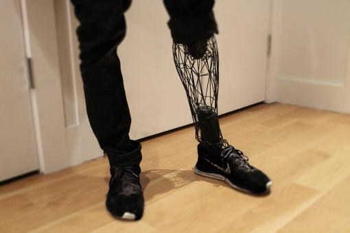 3d-printed-exo-prosthetic-leg-designboom02
